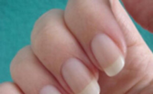Nagelverkleuringen? Tips & Tricks!